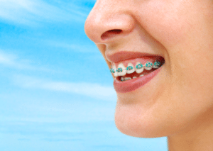 braces for adults in succasunna nj